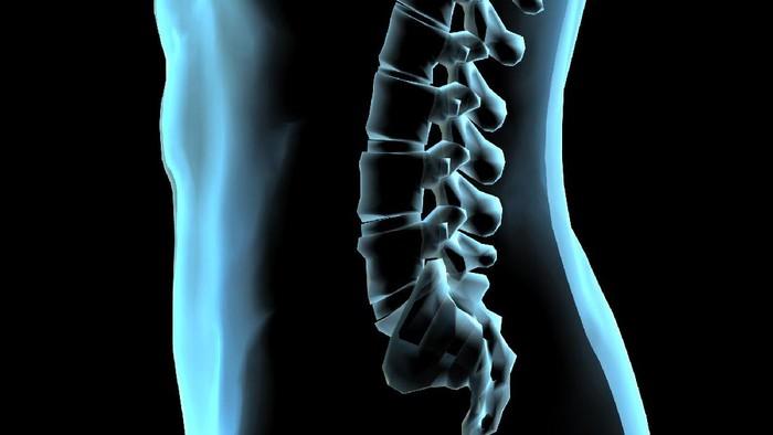 Tulang belakang memang tidak ada yang sangat lurus. (Foto: iStock)