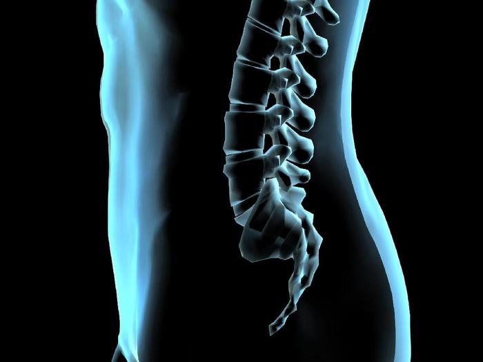 Skoliosis sangat menyiksa penyandangnya. Foto: ilustrasi/thinkstock