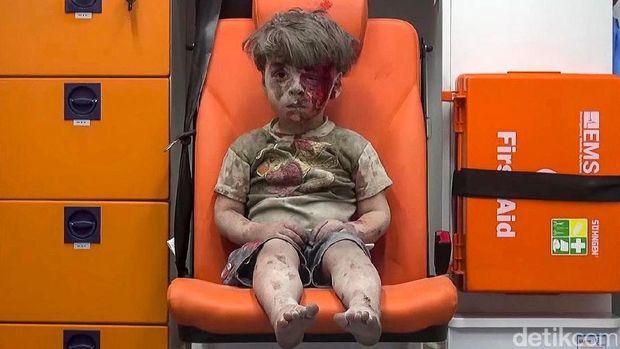 Anak-anak ini Jadi Simbol Kejinya Perang di Suriah