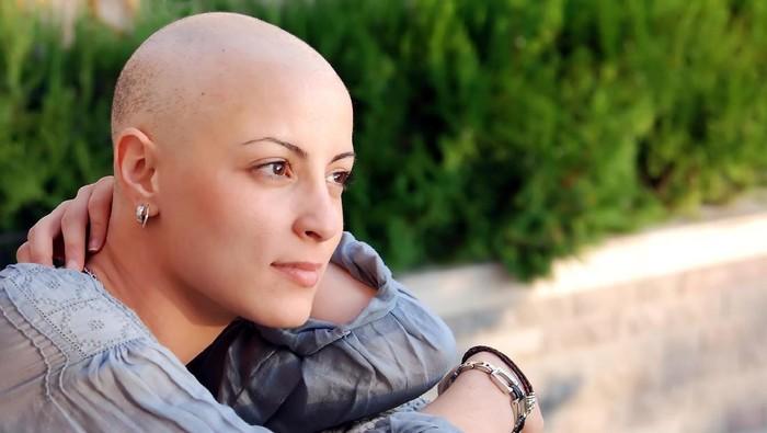 Ilustrasi pengidap kanker yang mengalami kerontokan rambut usai radiasi. Foto: Thinkstock