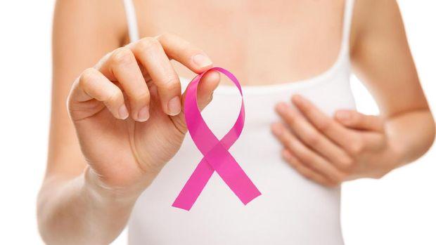 Ilustrasi kemoterapi untuk kanker payudara