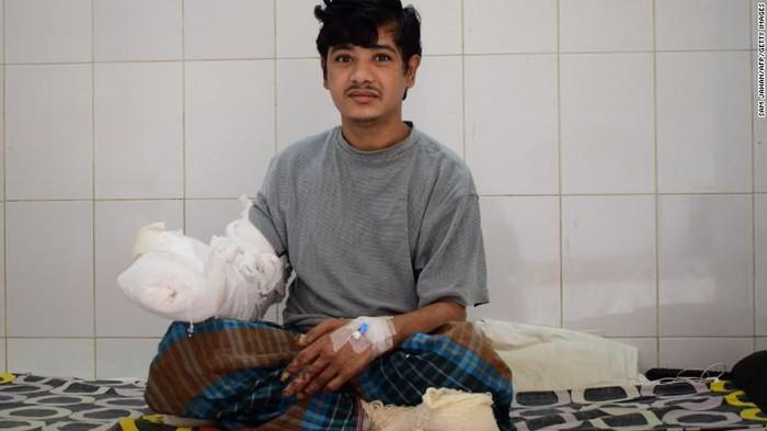 Abul pasca operasi setahun yang lalu. Foto: CNN