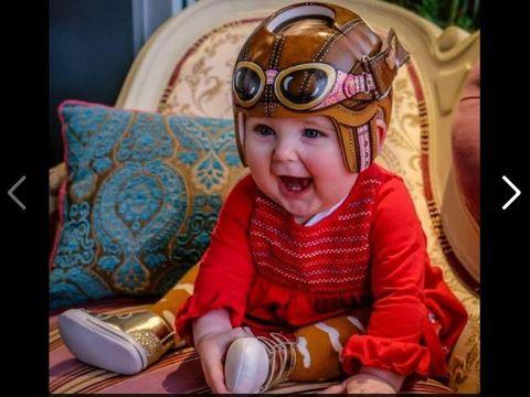 Lucunya Anak-anak Ini Meski Pakai Helm Korektif untuk Tengkoraknya