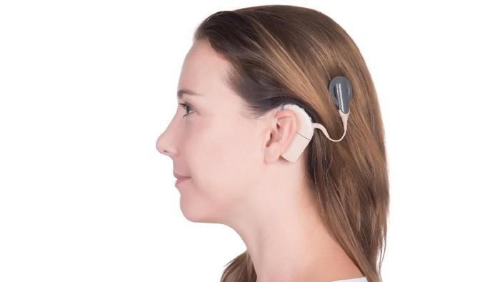 Penurunan kemampuan dengar akibat ketulian bisanya berlangsung bertahap. (Foto: ilustrasi/thinkstock)