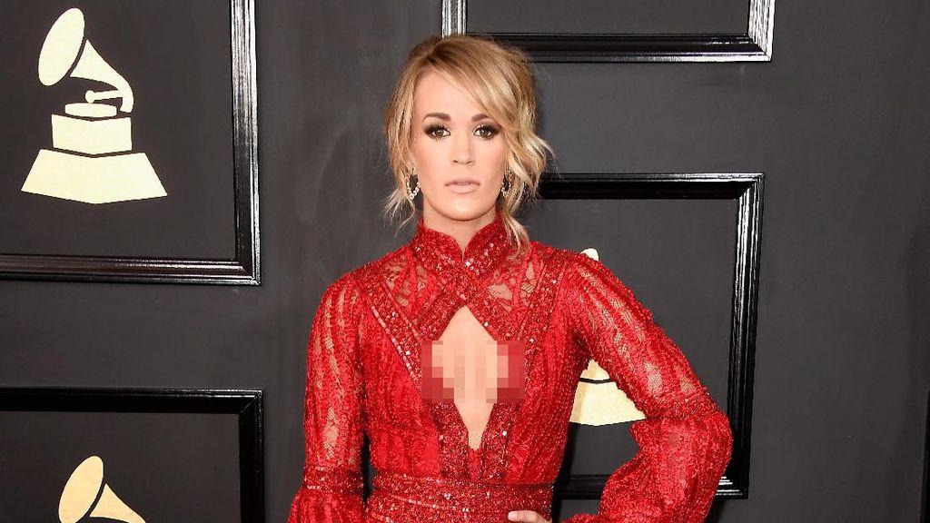 Seperti Carrie Underwood, 6 Artis Ini Juga Punya Bekas Luka