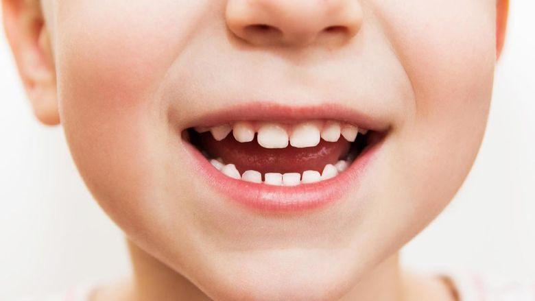 Duh Si Kecil Giginya Kuning Apa Ya Penyebabnya