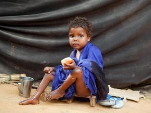 110 Orang Tewas Akibat Kekeringan dan Kelaparan di Somalia