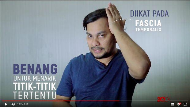 Video: <I>Facelift</I> Tanpa Operasi, Mungkinkah?