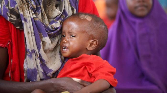 Potret anak yang mengalami masalah kekeringan di Somalia. (Foto: Reuters)