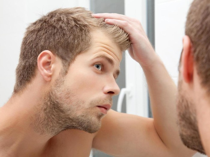Penyebab rambut rontok yang jarang diketahui/Foto: thinkstock
