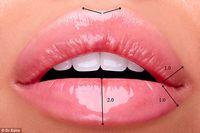 Bukan Seperti Kylie Jenner Ini Bentuk Bibir Sempurna Menurut Dokter