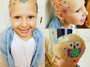 Anak Perempuan Ini Buktikan Bisa Tetap Cantik dengan Kepala Botak