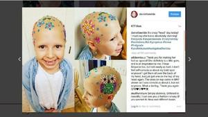 Meski Gundul karena Sakit, Bocah Ini Semangat Ikuti Crazy Hair Day
