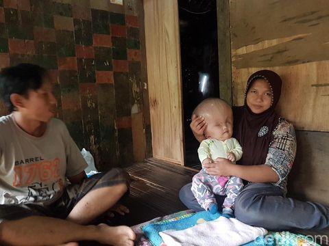 Kisah Bayi Hidrosefalus Asal Serang yang Divonis Tak Akan Sembuh