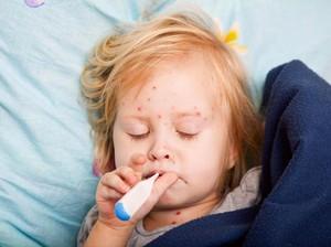 Siswi Kelas 2 SD Meninggal Pasca-imunisasi Massal di Sekolah