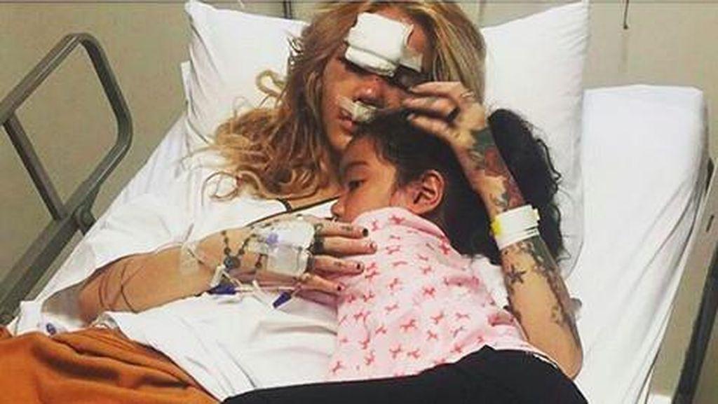Kecelakaan Sampai Hidung Retak, Sheila Marcia Ingin Cepat Pulang