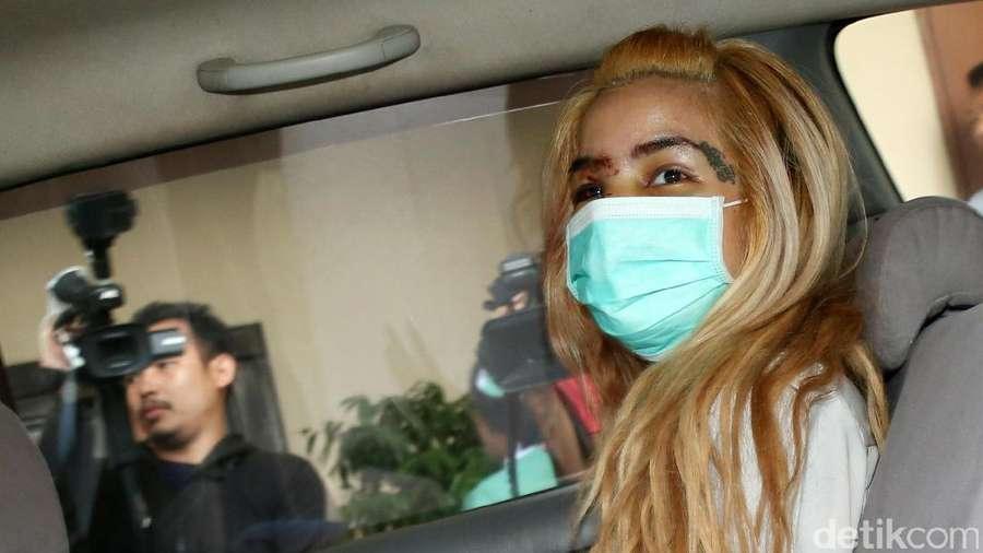 Penuh Luka di Wajah, Ini Penampakan Sheila Marcia Saat Keluar Rumah Sakit