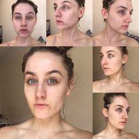 Setahun Tak Cuci Muka Pakai Sabun Kondisi Wajah Wanita Ini Mengejutkan