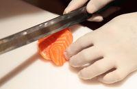 Hati-hati Infeksi Parasit Bisa Terjadi Setelah Makan Sushi, Seperti Dialami Pria Ini