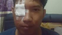 Serem! Kasus Iritasi Mata Parah karena Kena Abu Rokok Pengemudi di Jalan