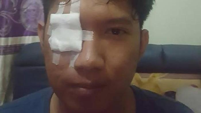 Kasus mata iritasi karena abu rokok pengendara motor di jalan. Foto: Facebook/Rendhy Maulana