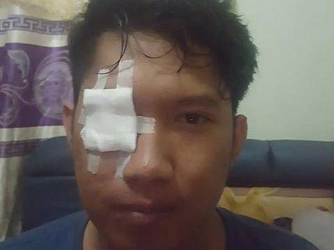 Rendhy Maulana mengalami iritasi pada mata akibat bara rokok