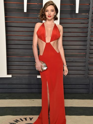 Miranda Kerr berbagi tips hindari stretch marks.