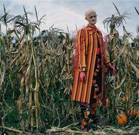 Mirip Manekin, Model dengan Kelainan Genetik Langka Curi Perhatian Dunia