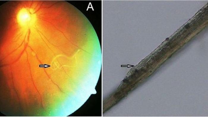 Seorang pria di India yang mengeluh sulit melihat menemukan ada cacing Loa-loa di matanya. Menurut dokter saat ditemukan sang cacing masih bergerak-gerak liar di bagian bening mata (vitreous). (Foto: BMJ Case Report)