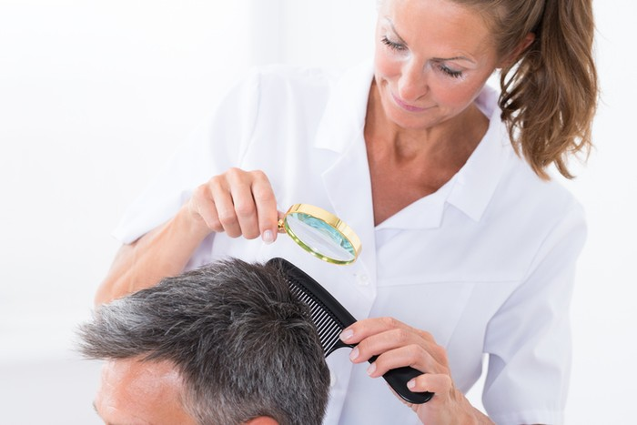 Cara menghilangkan kutu rambut secara alami dan aman. Foto: iStock