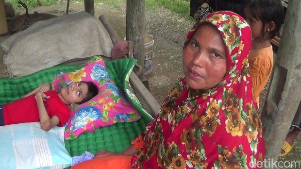 Amiruddin, Yatim Lumpuh Layu yang Hidup di 'Gubuk Derita' di Aceh