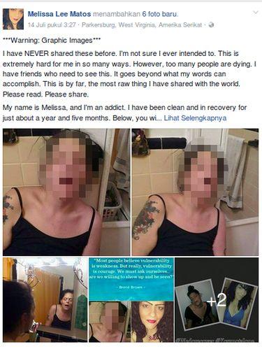 Kumpulan foto Melissa ketika dirinya kecanduan narkoba.