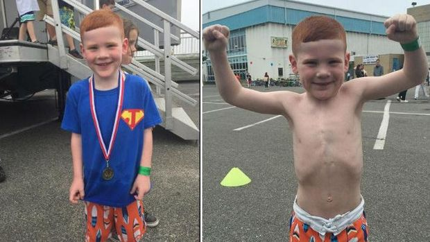 Walau berkali-kali menjalani operasi, Jack tetap sanggup menjalani triathlon