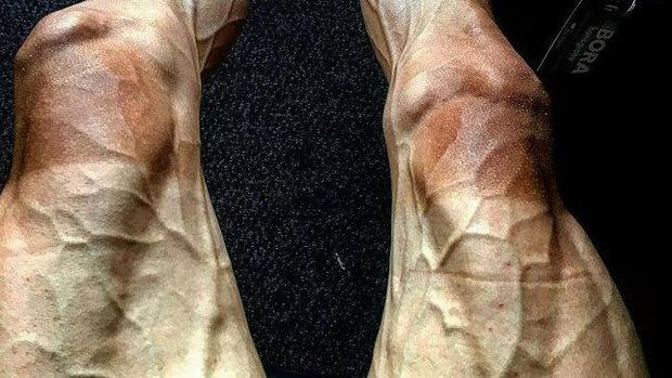 Penampakan kaki pebalap sepeda Pawel Poljanski yang berurat usai lomba