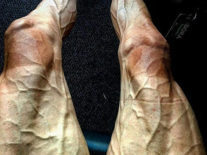 Pebalap sepeda asal Polandia, Pawel Poljanski mengunggah foto kakinya dipenuhi pembuluh darah menggembung atau biasa disebut varises di Instagramnya. Keadaan itu didapatinya setelah menyelesaikan tahap ke-16 dalam kejuaraan paling bergengsi dunia, Tour de France 2017. (Foto: Instagram/Pawel Poljanski)