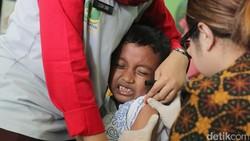 Dorong Vaksin MR, IDAI Sebut Campak di Indonesia Terjelek Kedua Sedunia