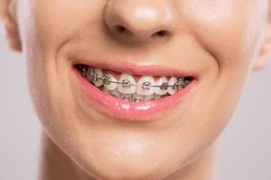 Keren! Begini Potret Perubahan Gigi Setelah Gunakan Behel