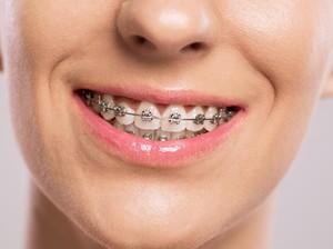 10 Tahun Tertelan, Potongan Kawat Gigi Diangkat dari Usus Wanita Ini
