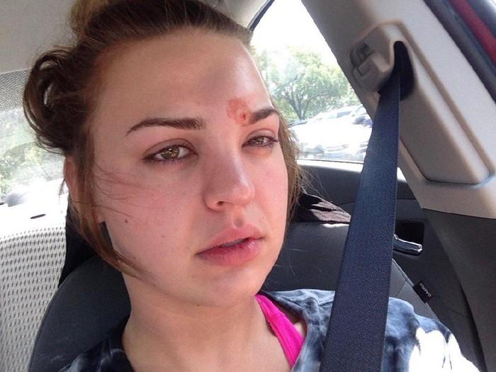 Benjolan di dahi Katie bukan jerawat tapi infeksi kulit (selulitis)/Foto: Twitter/katiewright