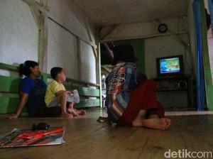 Derita Ramdan, Bocah 11 Tahun di Bandung Idap Tumor Ganas di Kepala