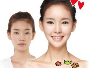 Perubahan Drastis Wanita Korea yang Operasi Plastik Kelopak Matanya