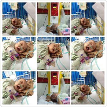 Foto-foto Hafizh yang mengalami pneumonia akibat asap rokok saat dirawat di rumah sakit