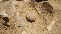 Batu ginjal terjadi ketika urine mengendap dan akhirnya mengkristal. Bila batu yang terbentuk cukup besar, seseorang bisa merasakan nyeri yang menyiksa.