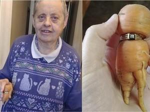 13 Tahun Mencari, Menantu Temukan Cincin Tunangan Wanita Ini Tersangkut di Wortel!
