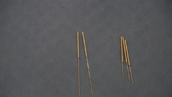 Menyeramkan! Ada Jarum Akupuntur Tertinggal 30 Tahun di Tubuh Pasien