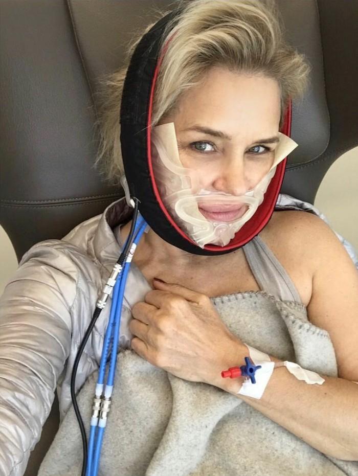Sebagian silikon dari implan payudara yang bocor bermigrasi ke area sinus Yolanda menyebabkan infeksi. ... tolong edukasi diri sendiri tentang apa saja yang masuk atau keluar dari tubuh Anda..., ujar Yolanda dalam unggahan instagramnya. (Foto: Instagram/yolanda.hadid)