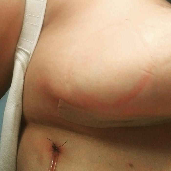 Selang masuk langsung dari kulit menuju area kosong pada payudara bekas implant dipasang. (Foto: Instagram/reallisaaxelrod)