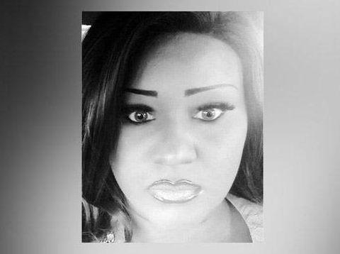 Diselingkuhi Tunangan, Wanita Ini Rogoh Rp 171 Juta Oplas Mirip Boneka Seks