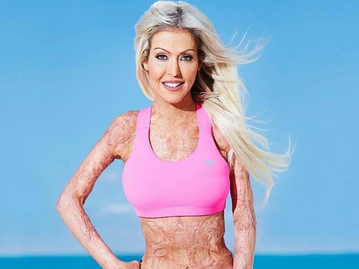 Dana, wanita yang dibakar hidup-hidup kini menjadi motivator. Foto: Instagram/dana_vulin