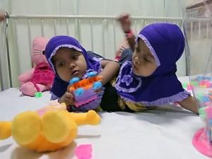 Kaki Tambahan Balita Kembar Siam Asal Garut Segera Dioperasi